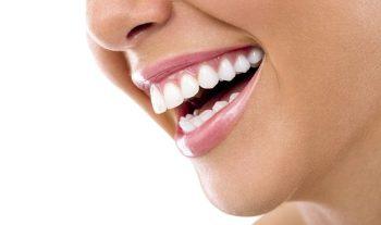 Na czym polega nakładkowe wybielanie zębów?