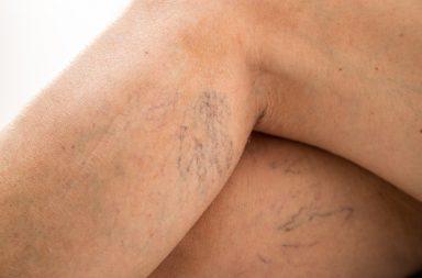 Kiedy należy poddać się skleroterapii?