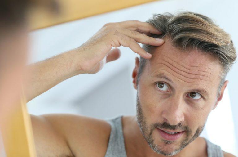 Leczenie lysienia – domowe i specjalistyczne metody